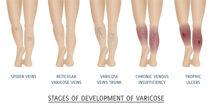 can you reverse spider veins